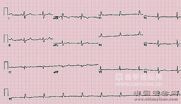 心电图解析与诊断精选 答案揭晓第三期